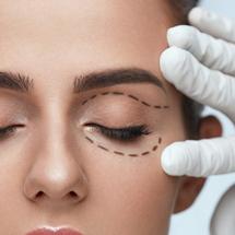 Eyelids (Blepharoplasty)